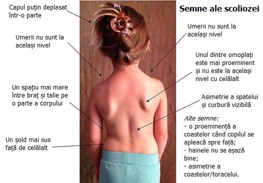 Terapia Schroth - Semne ale Scoliozei